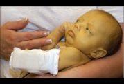 درمان خودسرانه زردی در نوزادان ممنوع!