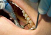 رفع ناراحتی ها پس از ترمیم دندان