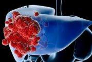 مقابله با بروز سرطان در کبد