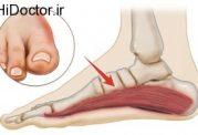 علت مهم گرفتگی در کف پا چیست؟