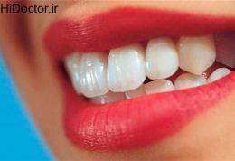 این عادات به دندان ها صدمه می زنند!