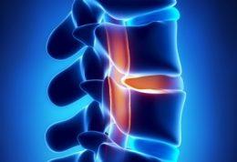 التهاب داشتن دیسک کمر را چه کنیم؟