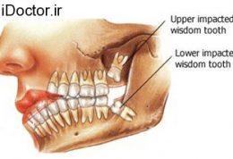 کاری به دندان عقل سالم نداشته باشید