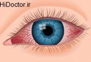کنترل مشکلات چشمی با این روش های خانگی
