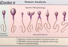 مطالب علمی و دانستنی های مهم در زمینه اسپرم