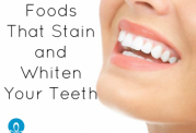 بهترین مواد خوراکی برای شفاف شدن دندان