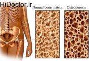 مراقبت های تغذیه ای لازم برای پوکی استخوان