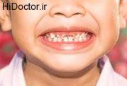 عوامل مرتبط با از بین رفتن دندان های شیری