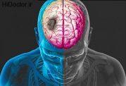 هشدارهای بدن برای سکته مغزی