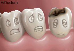 آسیب به دهان و دندان با این عادات مخرب