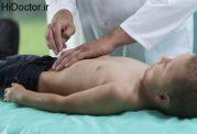 مشکل آپاندیس در سنین پایین و این روش های درمانی