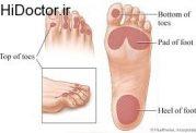 زخم پا در امراض قندی