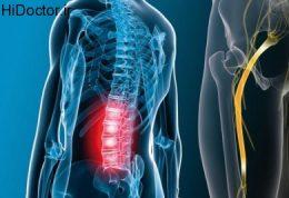 درد سیاتیک و این روش های خود درمانی