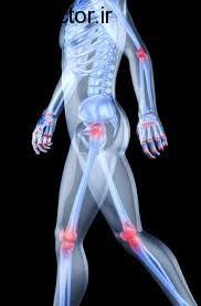 مراقبت از عضلات و مفاصل بدن