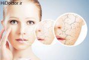 اصول مواجهه با خشک شدن پوست