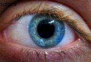 تاثیر عوامل ژنتیکی در بینایی افراد