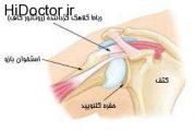 به روش معکوس چگونه مفصل شانه را بطورکامل تعویض میکنند