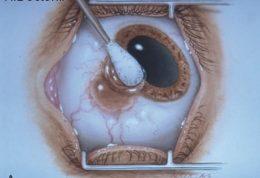 ملانوم چشم