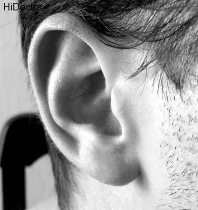 سوراخ شدن لاله گوش