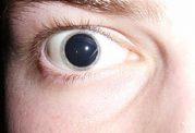 داروهای گشاد کننده مردمک و فلج کننده عضلات مژگانی