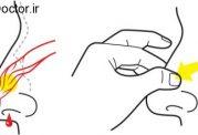 اقدامات اورژانسی برای بند آوردن خونریزی از بینی