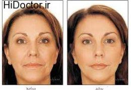 کمک لیزر برای مشکلات پوستی