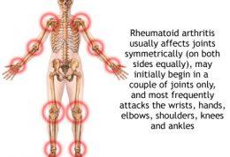 توصیه های درمانی طب سنتی برای عارضه های مفصلی