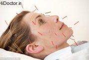 درمان علائم یائسگی با طب سوزنی