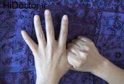 اهمیت ماساژ انگشت های دست