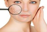 برطرف کردن ترک خوردگی پوست با این روش ها