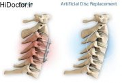 اقدامات درمانی مهم برای مشکل در دیسک گردن