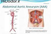 اختلالات مربوط به آئورت شکمی و این درمان ها