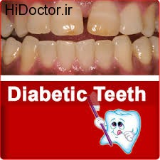 بیماران دیابتی و مراقبت های دندانی