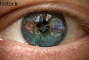 درمان  کندگی ریزشی شبکیه