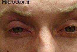 کونژنکتیویت (التهاب ملتحمه چشم) Conjunctivities