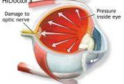 مایع زلالیه و فشار داخل چشمی
