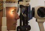 چگونه  با لامپ اسلیت چشم معاینه می شود