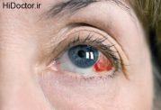 بررسی و درمان اختلالات چشم و بینایی
