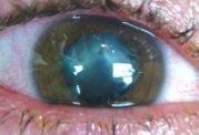 فرو رفتن جسم خارجی در داخل چشم (IOFB)