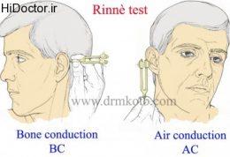 گوش و تست رینه Rinne Test