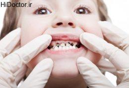 افزایش سلامت دهان و دندان خردسالان