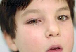 داروهای ضد حساسیت چشم  Antiallergy medication
