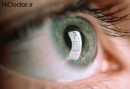 داروهای ضد عفونت چشم  Anti- Infectives