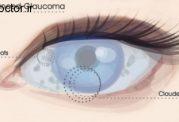 مراحل  تغییرات گلوکوم چشم