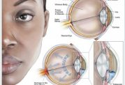گلوکوم چه نوع بیماری چشمی است