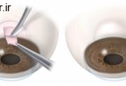 رایج ترین پروسجر جراحی برای گلوکوم