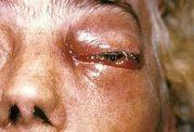 موکور میکوزیس (بیماری ناشی از عفونت خارجی) Mucormycosis