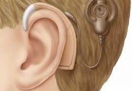 کم شنوایی و حلزون کاشتنی