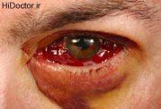 کنده شدن شبکیه Retinal detachment