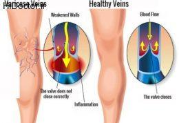درمان ورید های واریسی با ترکیبی از آلوئه ورا، هویج و سرکه سیب